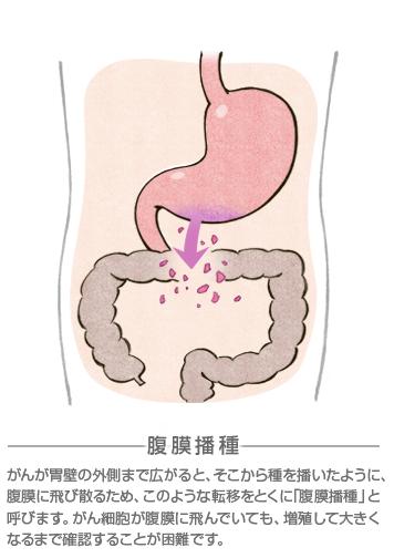 スキルス 胃がん